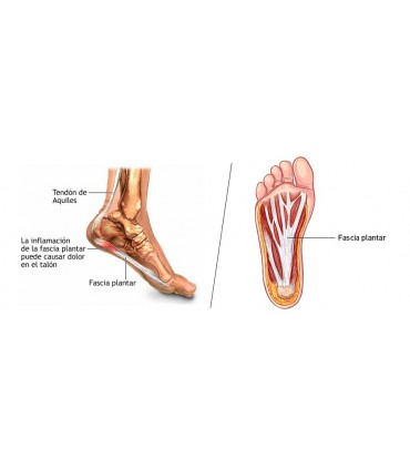 Fasciitis Rehab helps against Fasciitis plantar